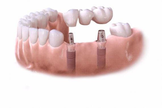 implanty dla osób starszych